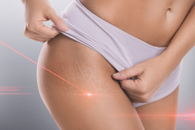 laser treatment stretch marks on buttocks